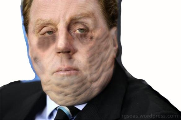 HarryRedknapp_face